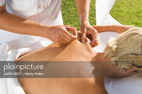 Man having acupuncture outdoors