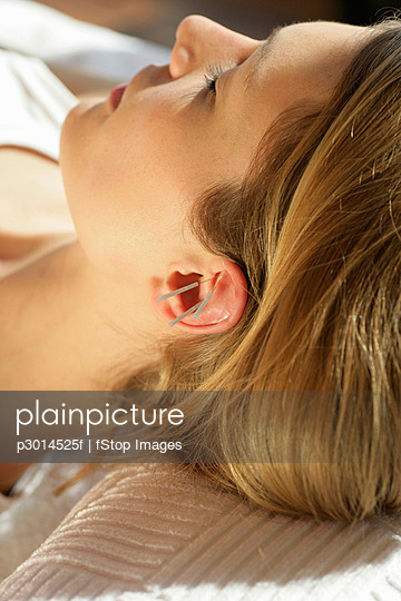 Close-up of woman with acupuncture needles on ear