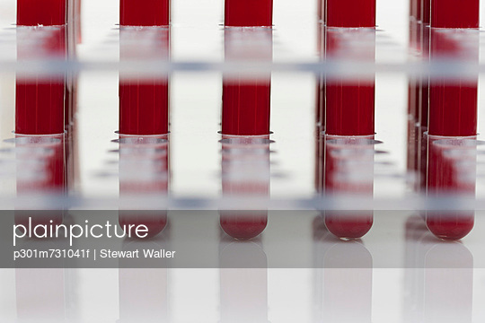 Row of blood samples in test tubes