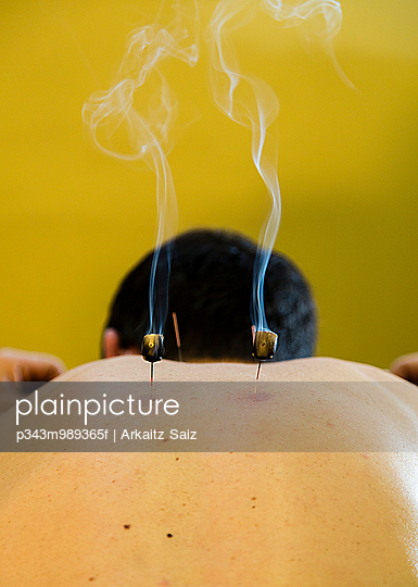 Person receiving an acupuncture treatment.