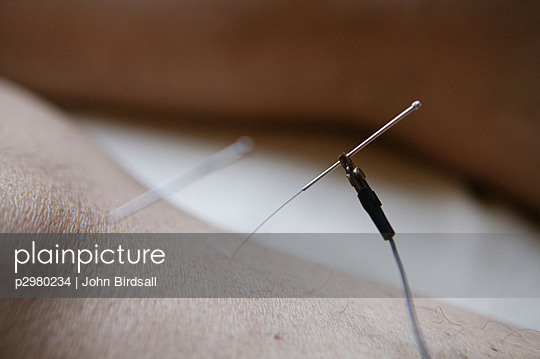 Electro acupuncture being applied with needles to patients leg.
