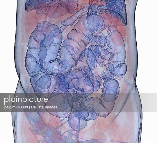3D CT scan, colonography, virtual colonoscopy