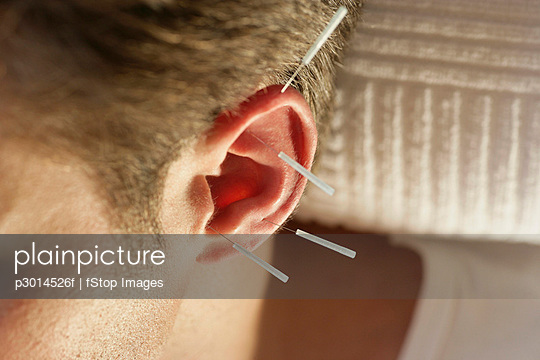 Close-up of man with acupuncture needles on ear