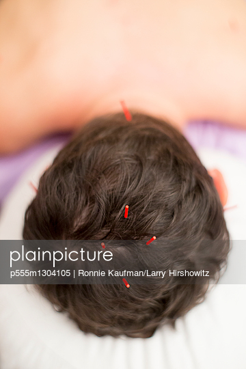 Acupuncture needles in scalp of Caucasian woman