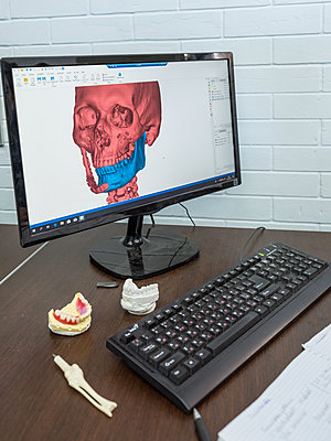 Production of a lawer jaw implant with CAD software on the computer - p390m2122325 by Frank Herfort