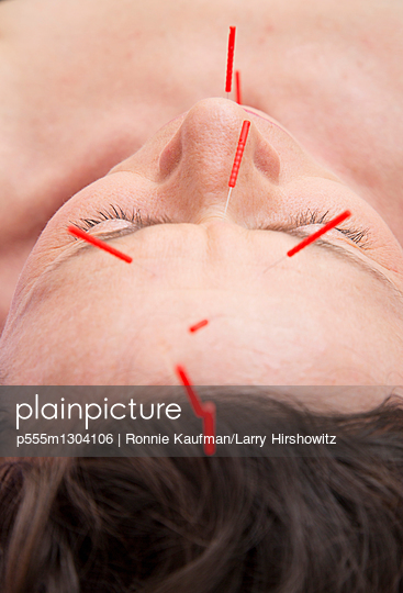 Acupuncture needles in face of Caucasian woman