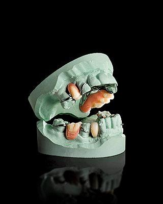 Denture - p1275m2210258 by cgimanufaktur