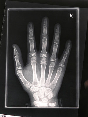 X-Ray Image - p5360026 by Schiesswohl