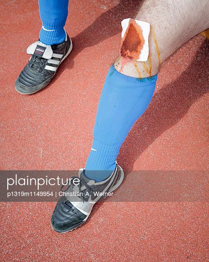Verletztes Knie und kaputter Schuh eines Amateurfußballers - p1319m1149954 von Christian A. Werner