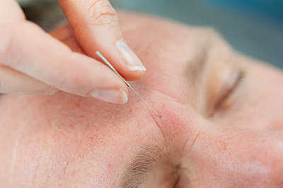 Acupuncturist inserting acupuncture needles into patient's skin - p429m1418143 by Arno Masse