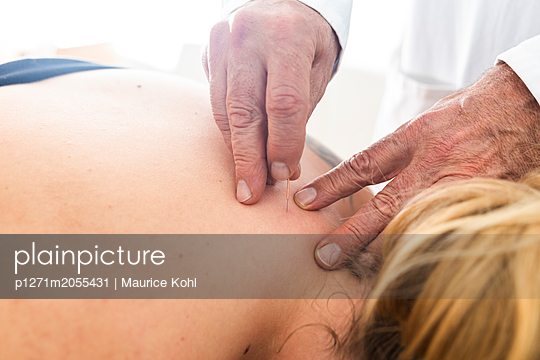 Akupunkturbehandlung - p1271m2055431 von Maurice Kohl