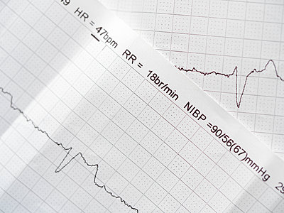 Printouts from an ECG Electrocardiogram test - p1302m1559526 by Richard Nixon