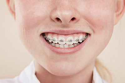 A smiling girl with braces on her teeth; close-up of mouth - p301m844166f by Paul Hudson