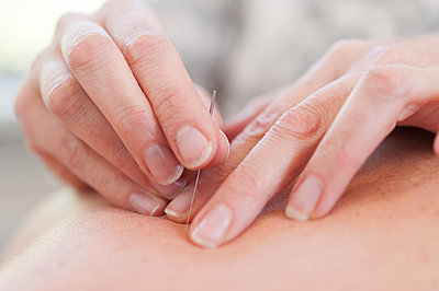 Acupuncturist inserting acupuncture needles into patient's skin - p429m1418145 by Arno Masse