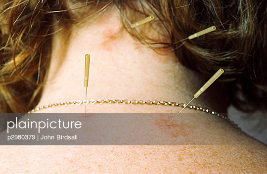 Acupuncture needles positioned in female patient\'s back and neck.