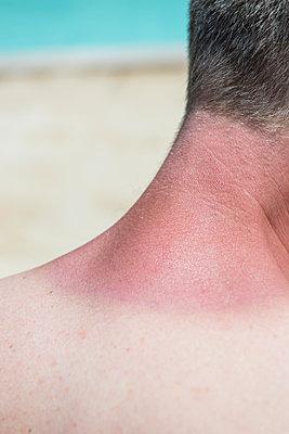 Sonnenbrand am Hals - p954m1585917 von Heidi Mayer