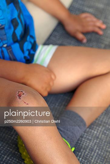 Healing wound - p250m2260903 by Christian Diehl