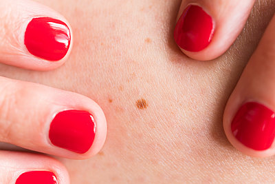 Close-up of woman wearing red nail polish touching skin with freckle - p1427m2135852 by Jamie Grill