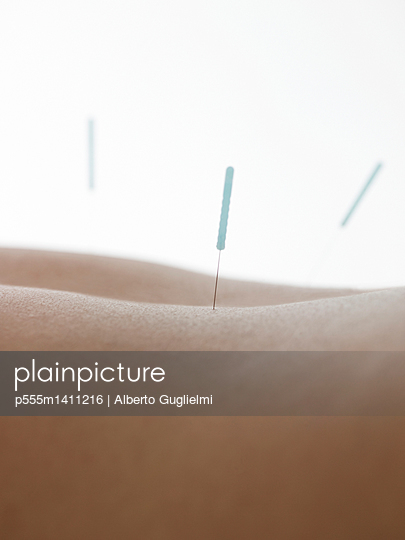 Close up of acupuncture needles in back of woman