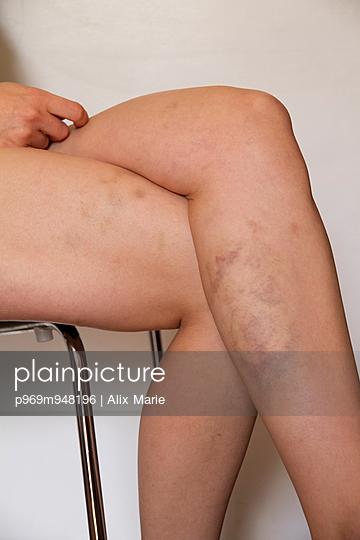 Bruised Leg - p969m948196 by Alix Marie