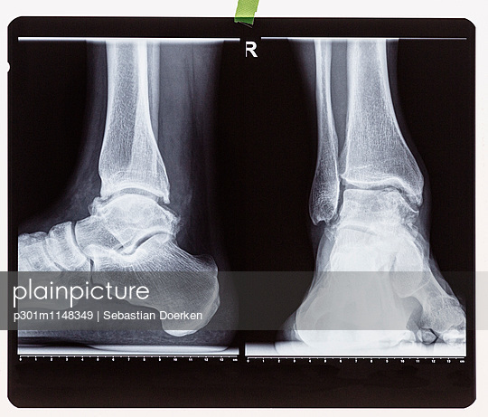 X-ray of the right foot ankle joint - p301m1148349 by Sebastian Doerken