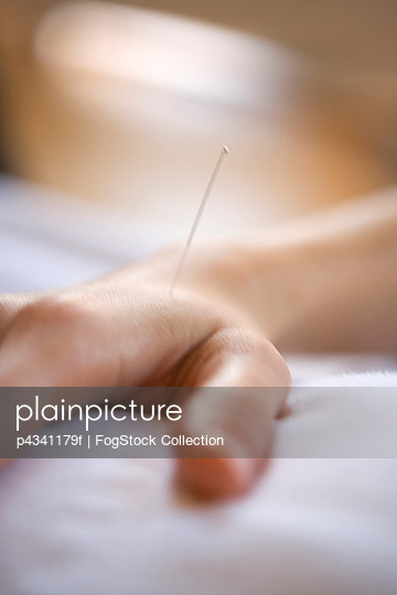 Hand with Acupuncture Needle