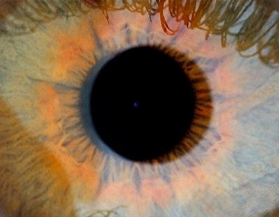 Pupille - p0900026 von Lenz