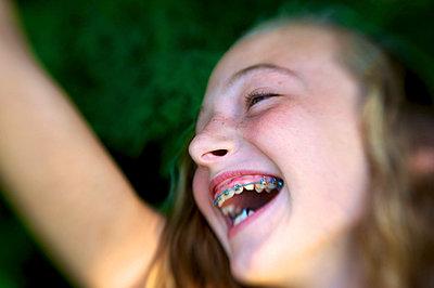 Lachen mit zahnspange - p1169m993967 von Tytia Habing