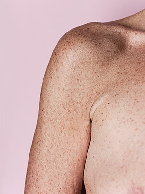 Bare shoulder of a woman with lots of freckles - p1383m2167958 by Wolfgang Steiner