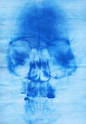 X-ray image - p969m2290869 by Alix Marie