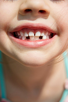 Two Tooth gaps - p954m831721 by Heidi Mayer