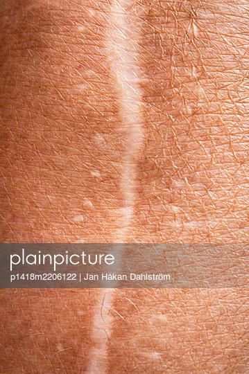 Knee surgery scar - p1418m2206122 by Jan Håkan Dahlström