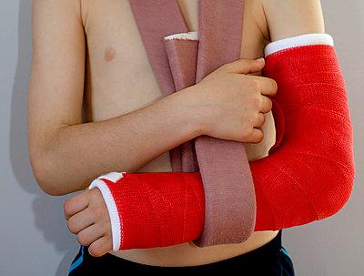 Broken Arm - p1082m912442 by Daniel Allan