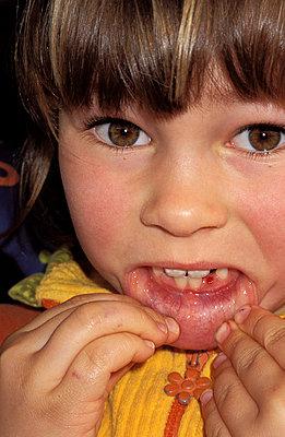 Mädchen zeigt Zahnlücke - p0220088 von Drecoll