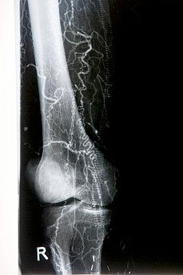 X-ray of the shinbone - p451m854930 by Anja Weber-Decker
