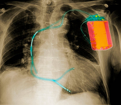 X-ray of chest with defibrillator - p429m743883 by Callista Images