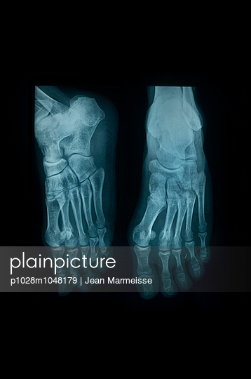 X-ray - p1028m1048179 by Jean Marmeisse