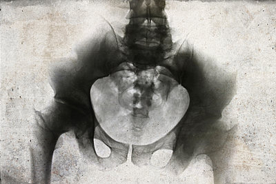 X-ray picture - p450m1115922 by Hanka Steidle