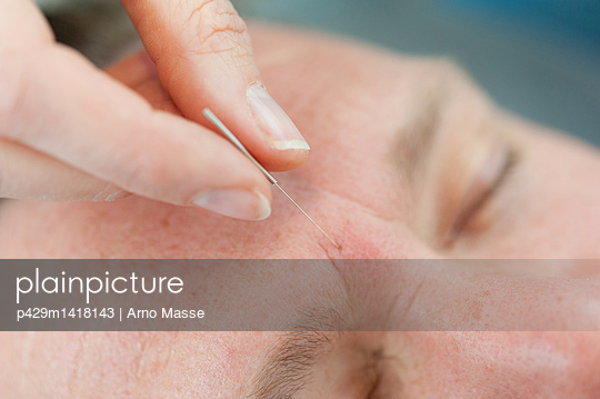 Acupuncturist inserting acupuncture needles into patient\'s skin