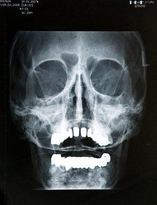 Skull - p451m738376 by Anja Weber-Decker