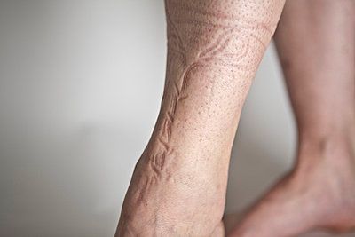 Abdruck auf der Haut - p4710063 von CLMasur