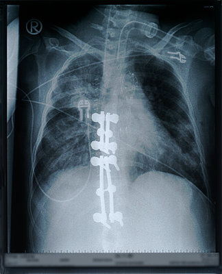 X-ray image - p726m2044497 by Katarzyna Zommer