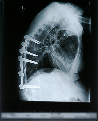 X-ray image - p726m2044498 by Katarzyna Zommer