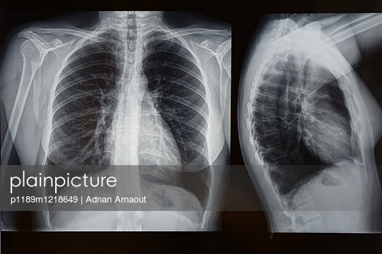 X-ray of female thorax - p1189m1218649 by Adnan Arnaout