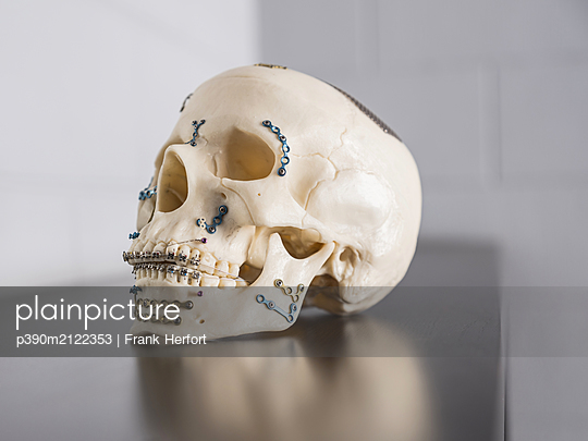 Implants for skull and lower jaw - p390m2122353 by Frank Herfort