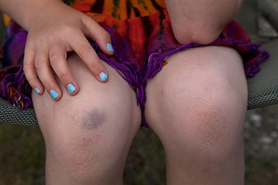 Knee bruise - p522m1039796 by Pauline Ruhl Saur