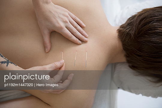 Acupuncturist applying needles to back of woman