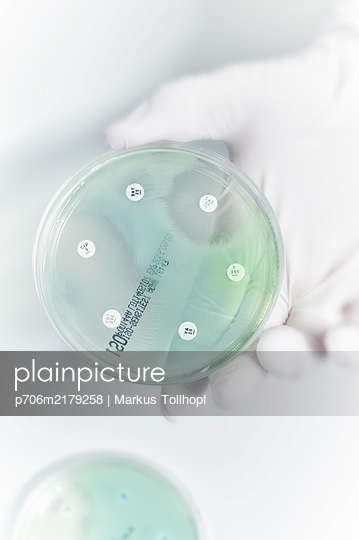 Petri dish with cell culture - p706m2179258 by Markus Tollhopf