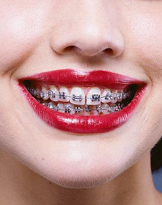 Zahnspange - p8510204 von Lohfink