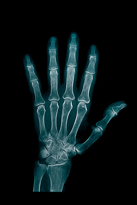 Hand x-ray - p1028m1077774 by Jean Marmeisse